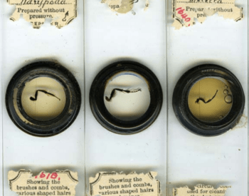 Microscope slides showing insect legs